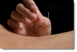 accupuncture demo